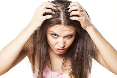 pellicules-cheveux